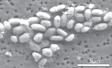 The bacteria GFAJ-1, shown here, can thrive on arsenic — a discovery that upends long-held assumptions about the basis of life here on Earth and elsewhere. Image: Science/AAAS
